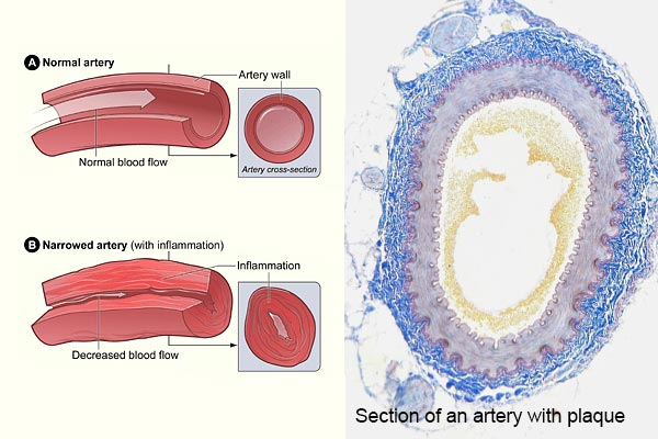 normal blood vessels and clogged blood vessels under pressure